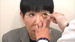 眼瞼下垂 和田アキ子