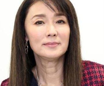 浅野ゆう子は首のシワの原因が手術痕でなはく黒皮症。股下99センチの真相