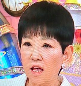 和田アキ子の目が変だったが改善した!病院を変更し眼瞼下垂の再手術を実施。